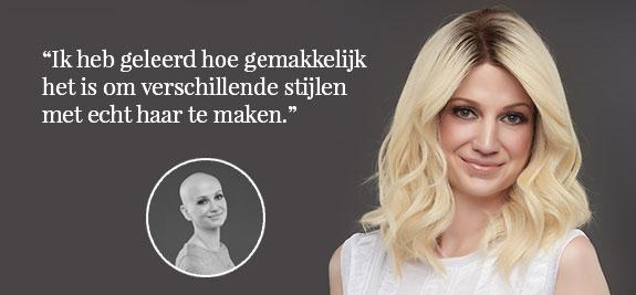 Pruik alopecia
